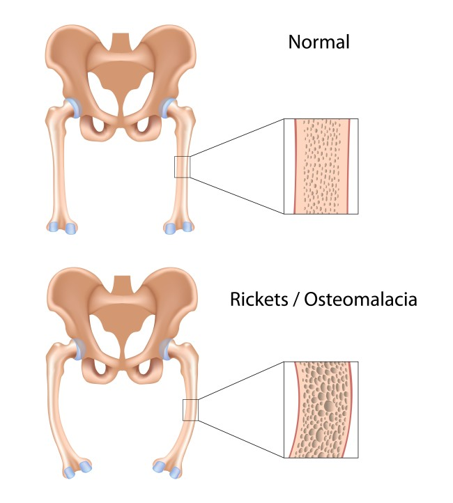 Osteomalacia - the softening of the bone