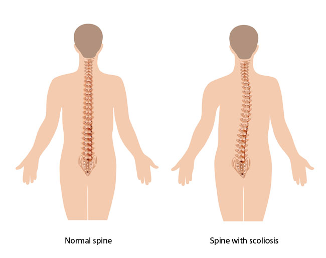 Spine with scoliosis