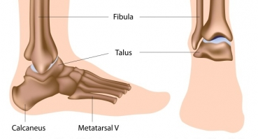 Degenerative disease of the crurotalar joint (ankle joint)